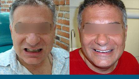 dentist-cancun